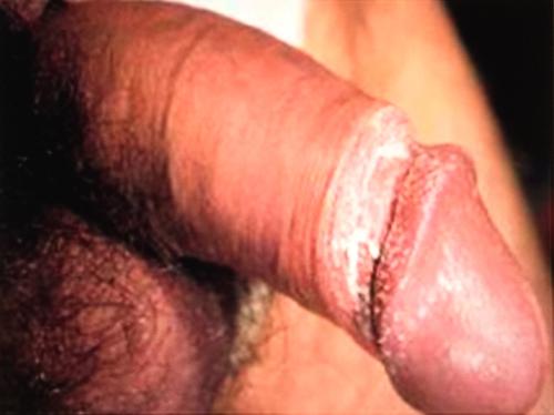 posle-seksa-zudit