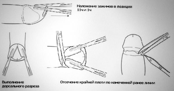 Сделать обрезание в новосибирске